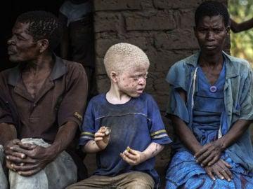 Los niños albinos son perseguidos por la superstición y la magia negra