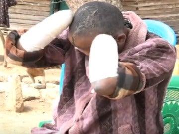 Jackline Mwende muestra las heridas que le ha infligido su marido en Kenia