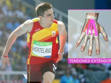 Bruno Hortelano, operado de los tendones extensores