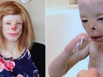 La joven Terri Cavelbert tras las cirugías