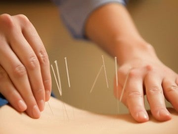 La acupuntura es un elemento clave en la medicina tradicional china.