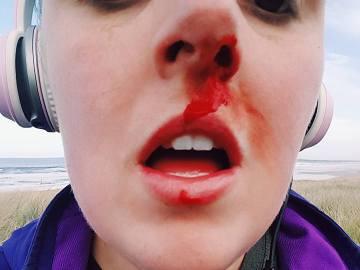 agresión a una joven