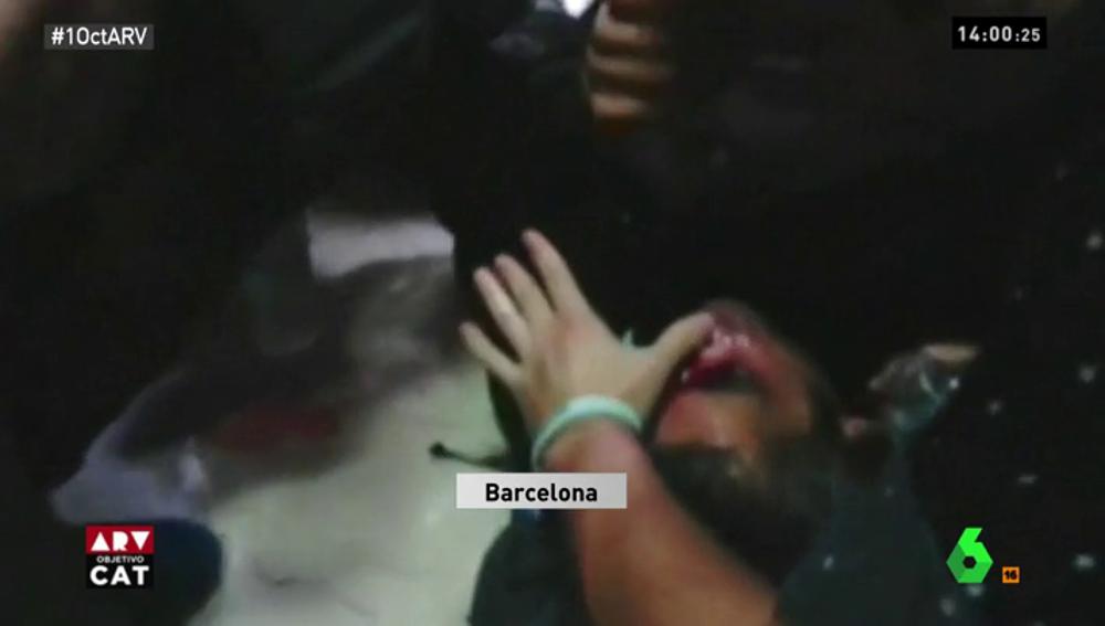 Herido en el ojo por una pelota de goma disparada por la Policía Nacional durante el 1-O