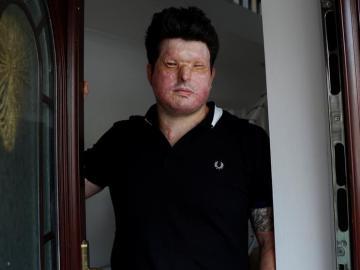 Andreas Christopheros, víctima de un ataque con ácido en Reino Unido