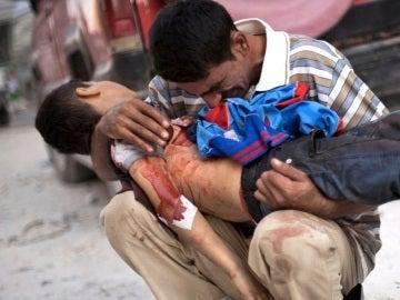 Un padre con su hijo muerto frente a un hospital de Alepo