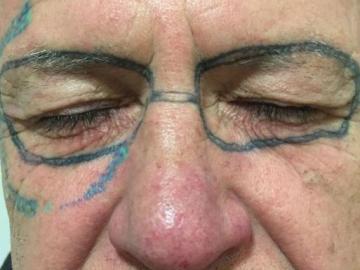 El hombre con las gafas tatuadas en la cara