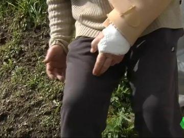 Una mujer de 62 años, intervenida durante ocho horas tras ser atacada por dos perros en Pontevedra