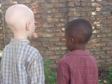 La 'caza' de los niños albinos en África