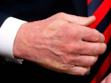 La mano de Trump marcada con los dedos de Macron