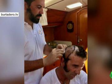 El torero Padilla comparte una foto de los puntos de sutura en su cabeza tras la cornada que recibió