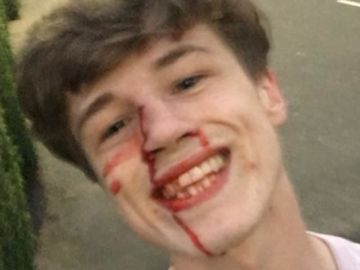 Joven agredido