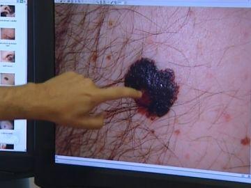 Los malanocitos son las manchas en la piel que aparecen por la radiación solar
