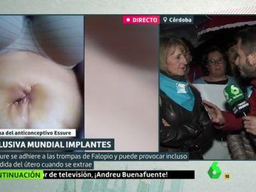 """El calvario de las afectadas por el anticonceptivo Essure: """"Me perforaron la uretra y la vejiga"""""""