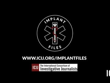 Investigación periodística Informe Implantes