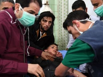 Imagen de un menor hospitalizado tras el ataque con gas cloro en Alepo