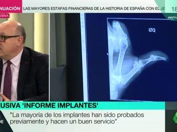 """Xavier Gil, sobre los controles a los implantes defectuosos: """"El problema es que el fabricante elige quién va a ser su árbitro de fútbol"""""""