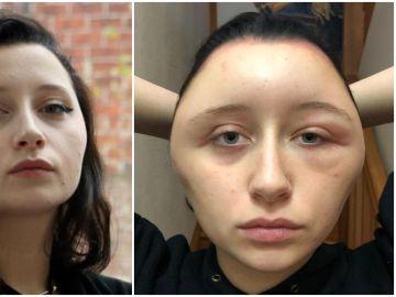 Imagen de la joven con la cabeza deformada tras teñirse el pelo