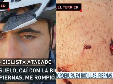 Un ciclista, atacado por un bull terrier