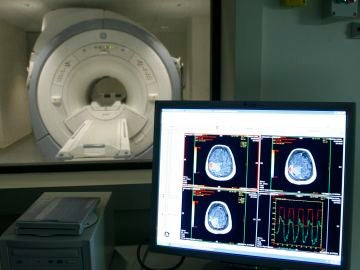 Imagen de un tumor cerebral
