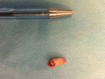 El diente que los médicos extrajeron del orificio nasal