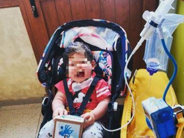 El pequeño Fabio que sufre atresia de esófago