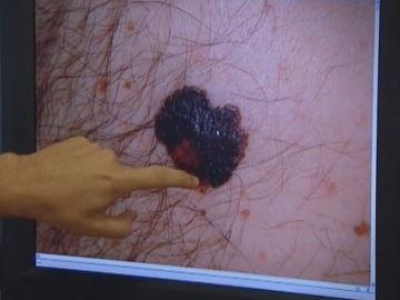 Imagen de un melanoma