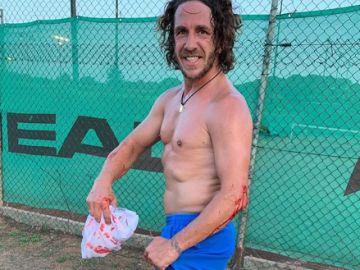 Puyol, tras su incidente con el pádel