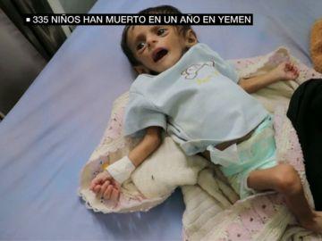 335 muertos y 600 heridos: la escalofriante cifra de víctimas infantiles en Yemen en un año
