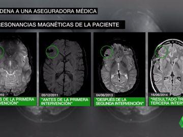 Dos médicos engañan a una menor de Madrid al decirle que le habían extirpado un tumor cuando seguía con él