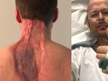 Ryan Glossop tras las operaciones.