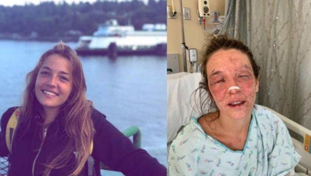 Imagen de Marta antes y después del accidente con sosa cáustica