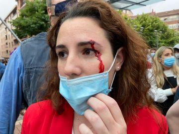 La diputada de Vox Rocío de Meer, herida