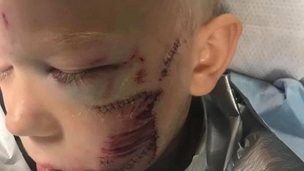Bridger Walker ha recibido 90 puntos de sutura