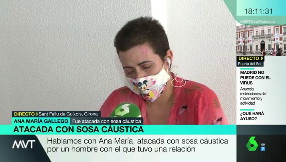 Ana María, atacada con sosa cáustica por una expareja
