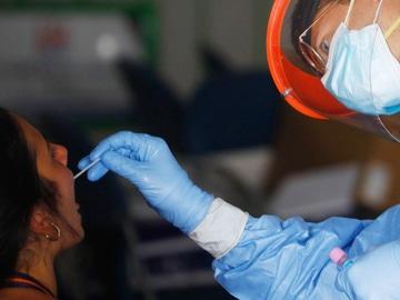 Una paciente se somete a una prueba PCR