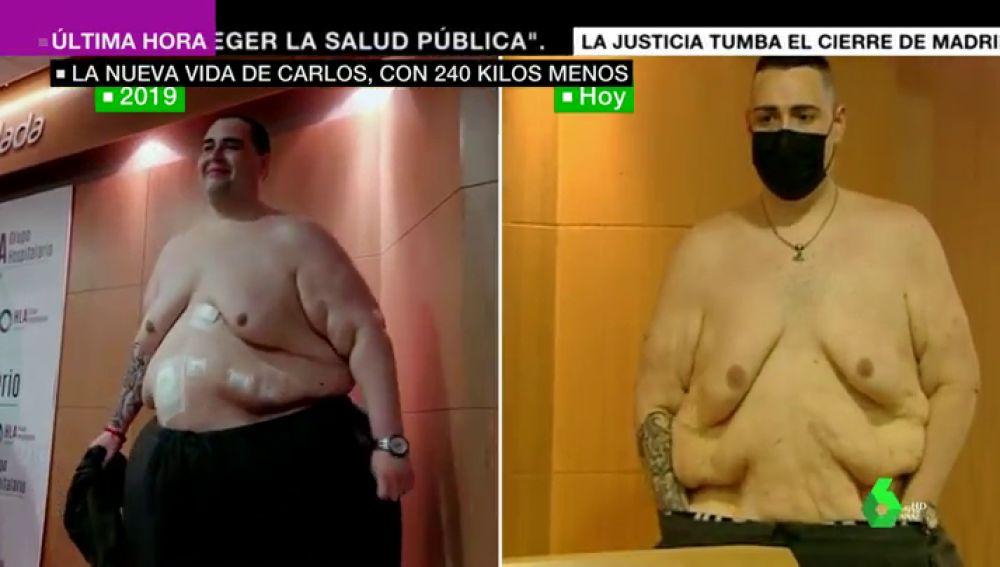 250 kilos menos