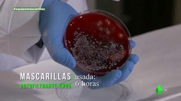 Cuida bien tu mascarilla contra otro 'problema invisible': el coronavirus no es lo único que puede hacerte daño