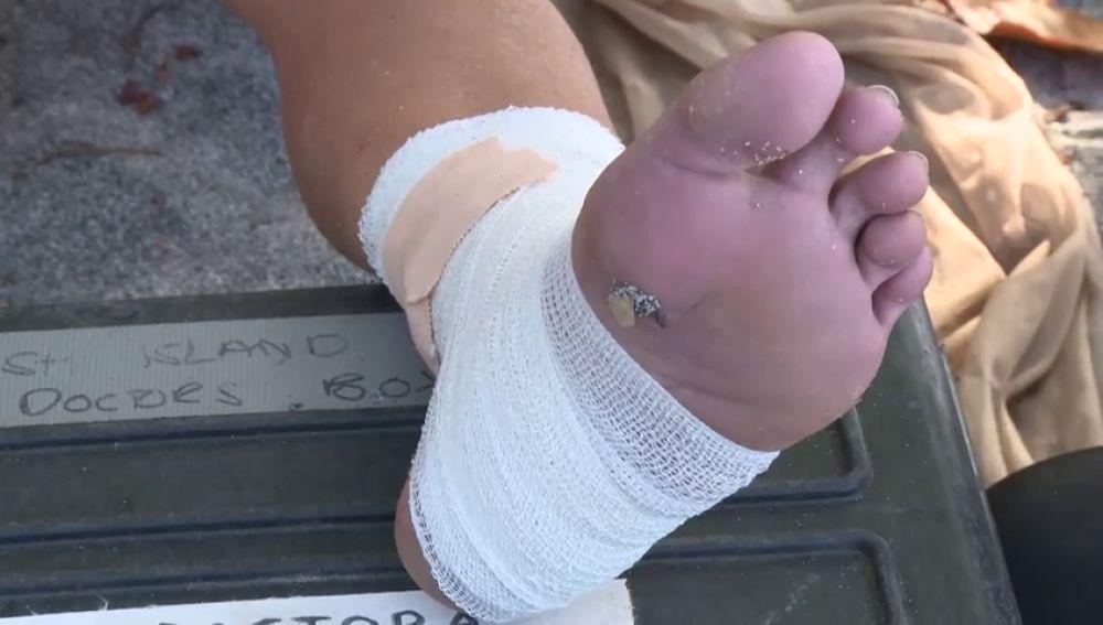 """La aparatosa caída de Rocío que la deja impedida al menos una semana: """"Tiene un esguince en el ligamento interno"""""""