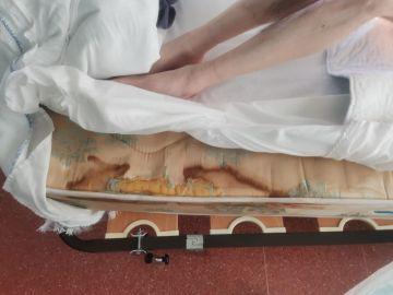 Imagen de la cama de una residente, en condiciones lamentables