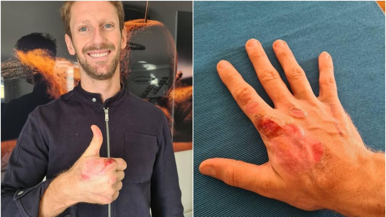 Así han quedado las manos de Grosjean tras su accidente