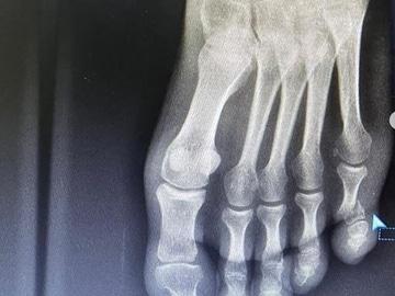 Radiografía del pie izquierdo de Urán