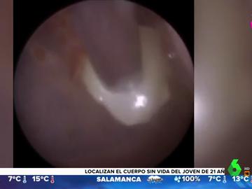 Impactantes imágenes: extraen un diente del tímpano de un niño de tres años