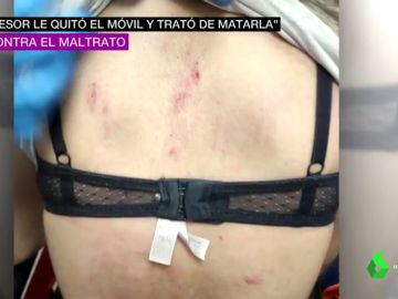 Buscan al agresor de una chica de 16 años en Málaga: le rompió dos vértebras porque quería romper la relación