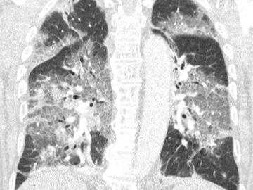 Radiografía de los pulmones de un paciente con coronavirus ingresado en la UCI