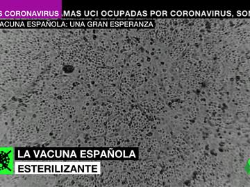 Barata, intranasal y 100%: así puede ser la vacuna española, la gran esperanza contra el coronavirus