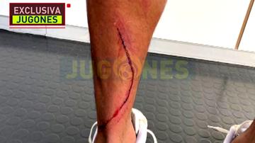 Exclusiva 'Jugones': así quedó la pierna de Marvin tras la entrada de Machís