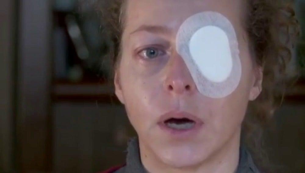 Esther Quintana cuenta cómo perdió un ojo