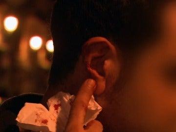 Le pegan un mordisco en la oreja a un joven