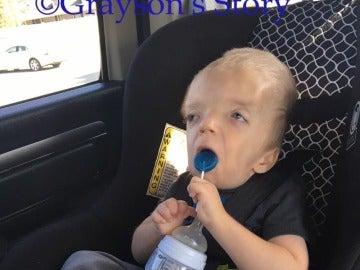 Grayson, el niño con enfermedad terminal del que se están haciendo memes