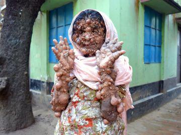 Hosineara Begum, una de las personas con más tumores del mundo